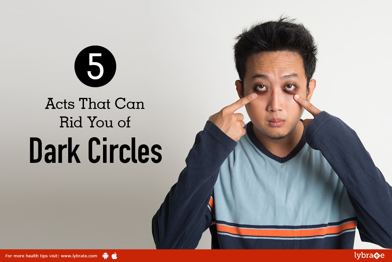5 Acts That Can Rid You of Dark Circles